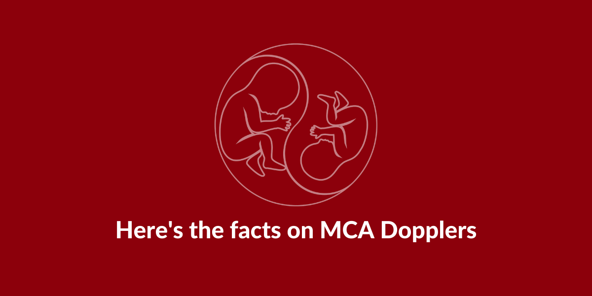 Here's the facts on MCA Dopplers