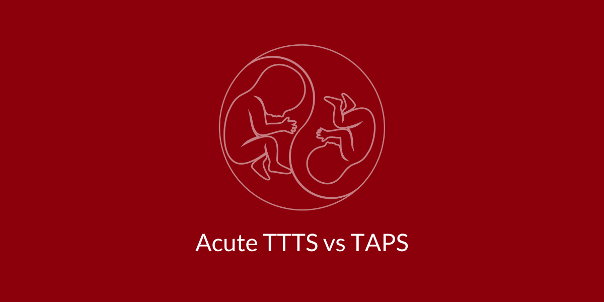 Acute TTTS TAPS twin anemia polycythemia sequence
